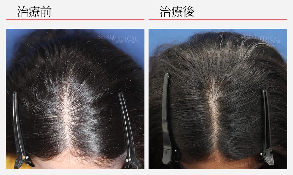 毛髪再生療法 ヘアリバイバル ロゲイン