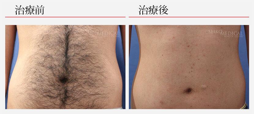 脱毛 30代男性 腹部脱毛8回 187,000円(税抜)