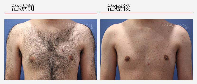 脱毛 30代男性 胸部脱毛8回 264,000円(税抜)