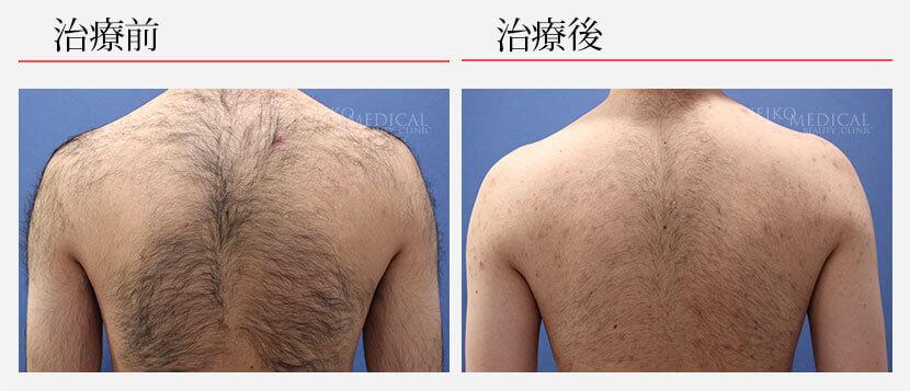 脱毛 30代男性 背中脱毛8回 264,000円(税抜)