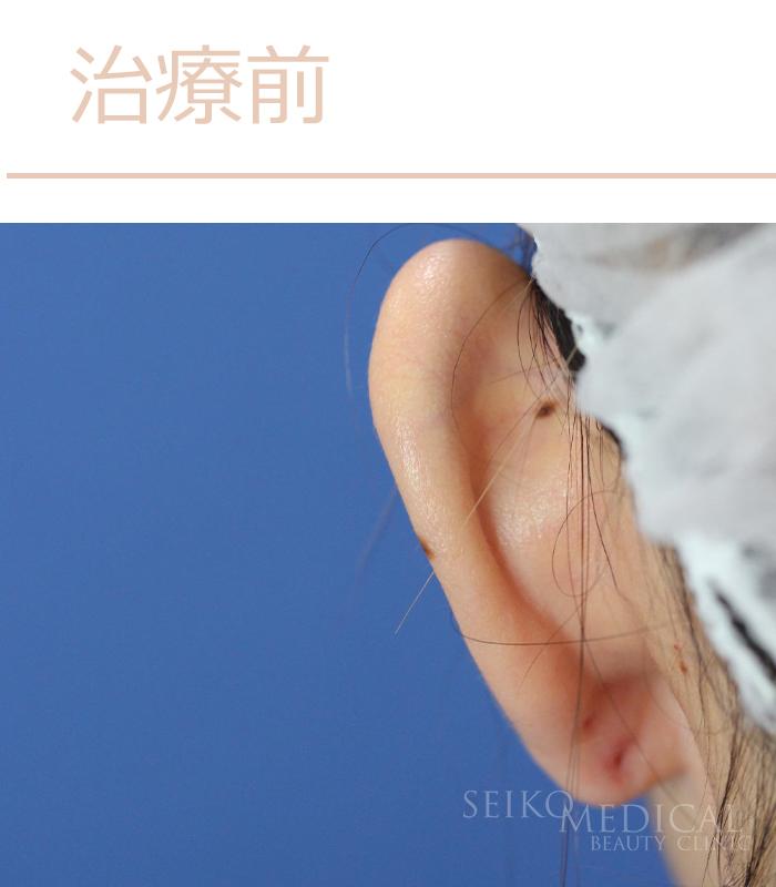 立ち耳治療症例写真治療前
