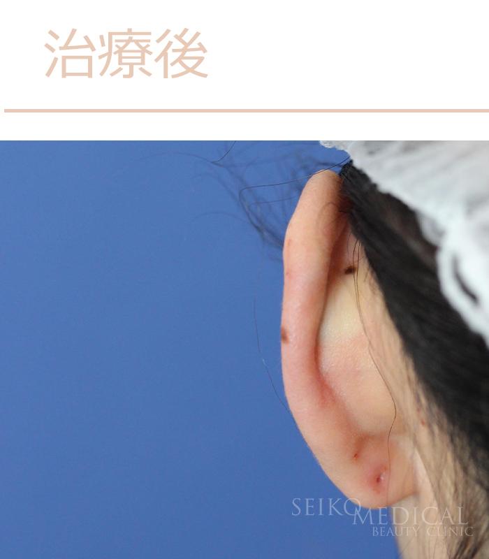 立ち耳治療症例写真治療後