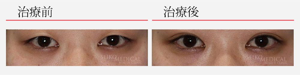 埋没法2点留め+上眼瞼脂肪除去 223,611円 20代女性