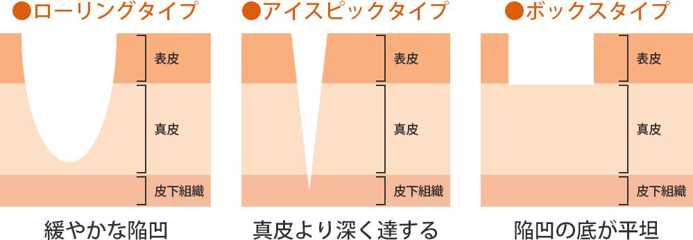 ニキビ痕の種類 ローリングタイプ アイスピックタイプ ボックスタイプ