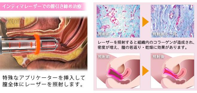 インティマレーザー膣の引き締め治療