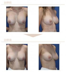 シリコンバッグ豊胸術代表症例