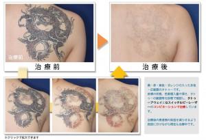 タトゥーアウェイ タトゥー除去 刺青除去