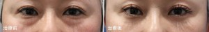 下眼瞼脂肪除去法