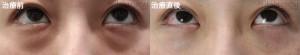 下眼瞼脂肪除去