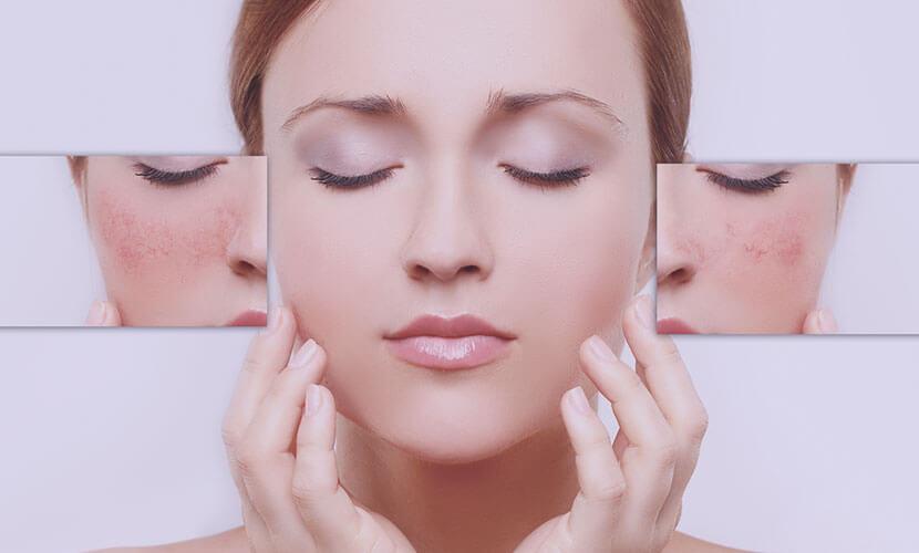 毛細血管拡張症や血管腫を改善。