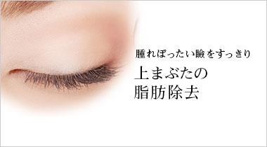 腫れぼったい瞼をすっきり 上まぶたの 脂肪除去