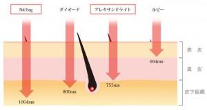エリート波長の図