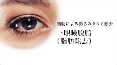 脂肪による膨らみタルミ除去 当院オリジナル 下眼瞼脂肪除去