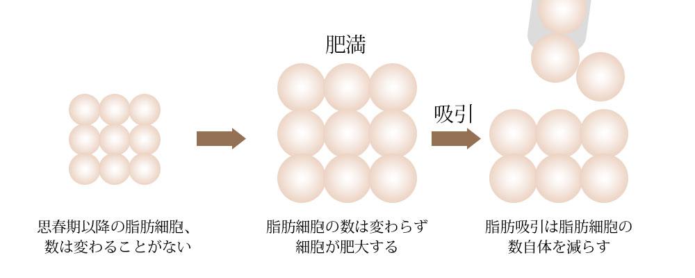 脂肪吸引で脂肪細胞の数自体を減らします。