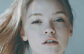 目尻切開 憧れの大きな瞳に まぶたの目尻側を切開することによって、 目を外側に向かって拡げる施術です。 目の横幅が広がり目が大きくなります。