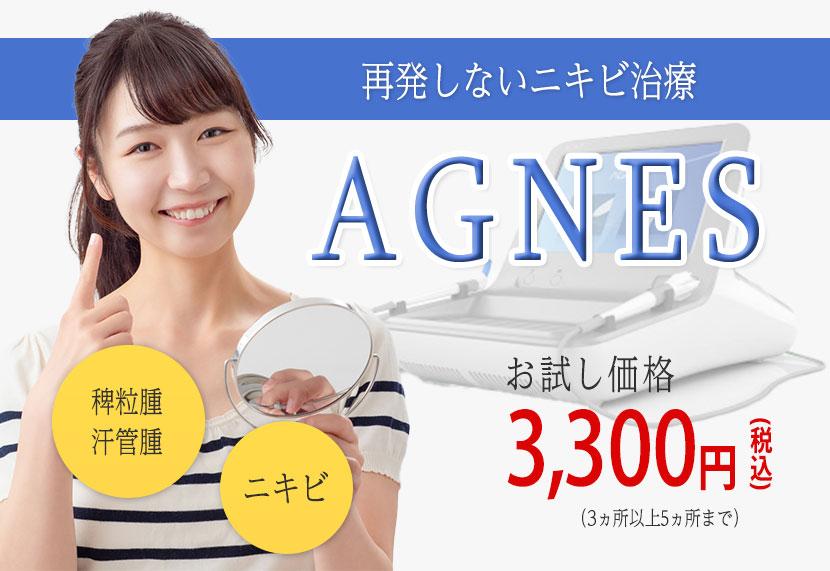 再発しないニキビ治療AGNES
