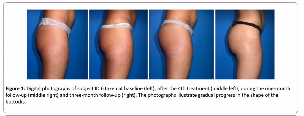 痩身治療器エムスカルプト emsculpt の臨床研究や論文について パート7