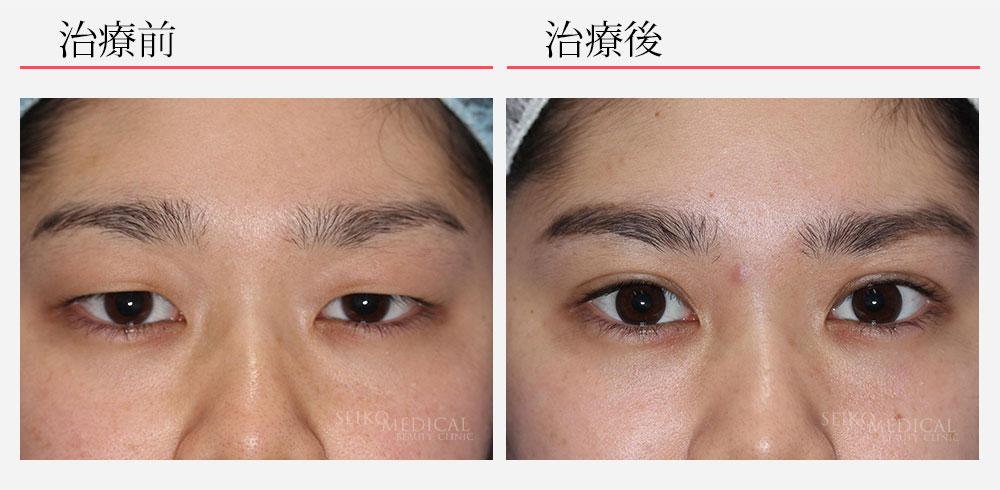 切らない下垂修正法+セイコ式マイクロカット法3点留め+上眼瞼脂肪除去