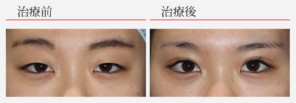 下垂修正+部分切開法2点留め+上眼瞼脂肪除去