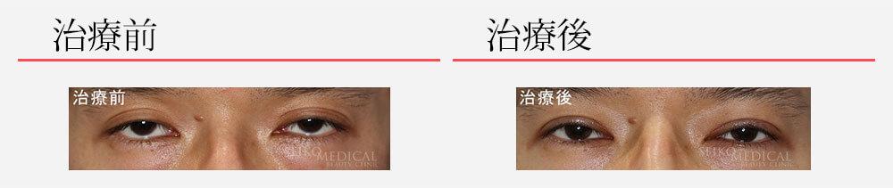 切らない眼瞼下垂修正法