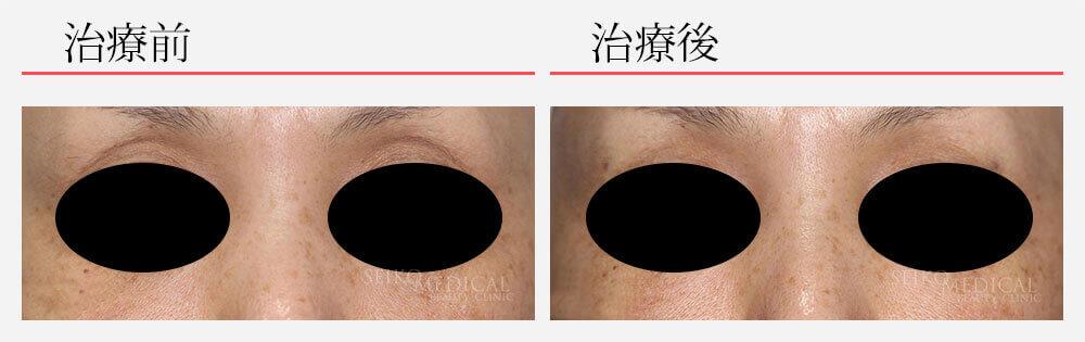 上眼瞼 ヒアルロン酸注入