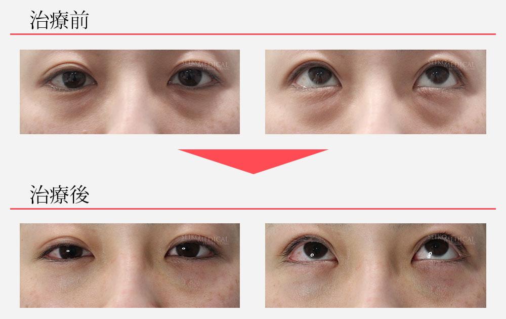 当院オリジナル 下眼瞼脂肪除去