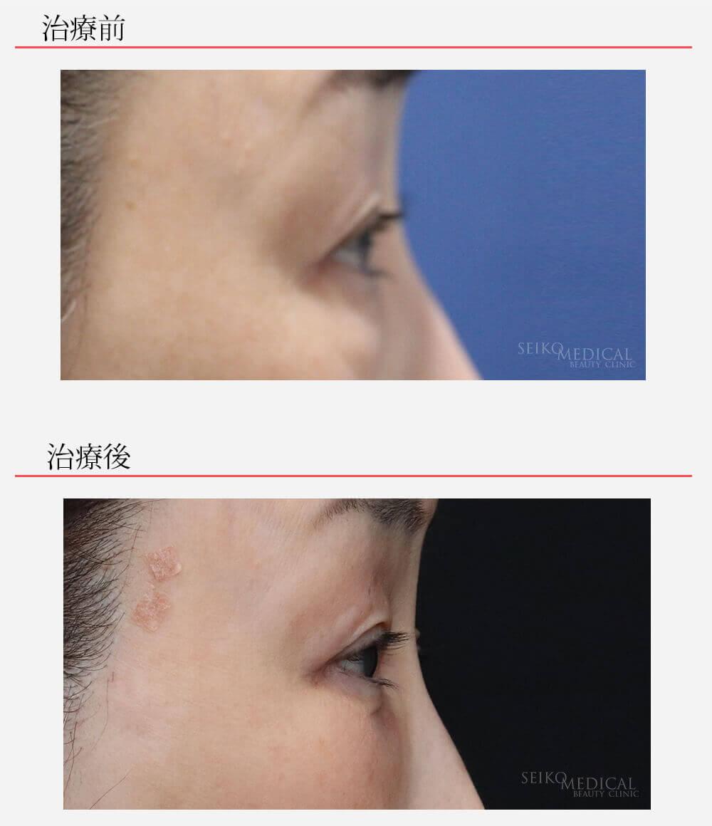 当院オリジナル 下眼瞼脂肪除去 脂肪注入 目の下皮膚切除