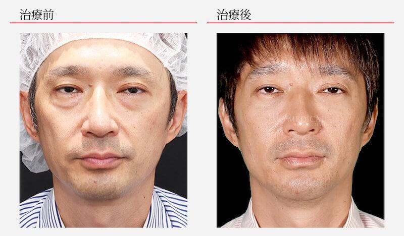 下眼瞼脂肪除去 ヒアルロン酸注入