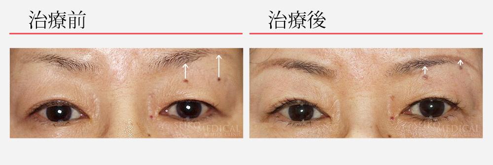 治療名眉下切開法 費用概算280,000円(税抜) 患者様属性 (治療時)60代 女性 リスク・副作用内出血、左右差、腫脹、眉毛の脱毛、傷痕が目立つ場合がある、上瞼の目頭側の皮膚の引きつれ