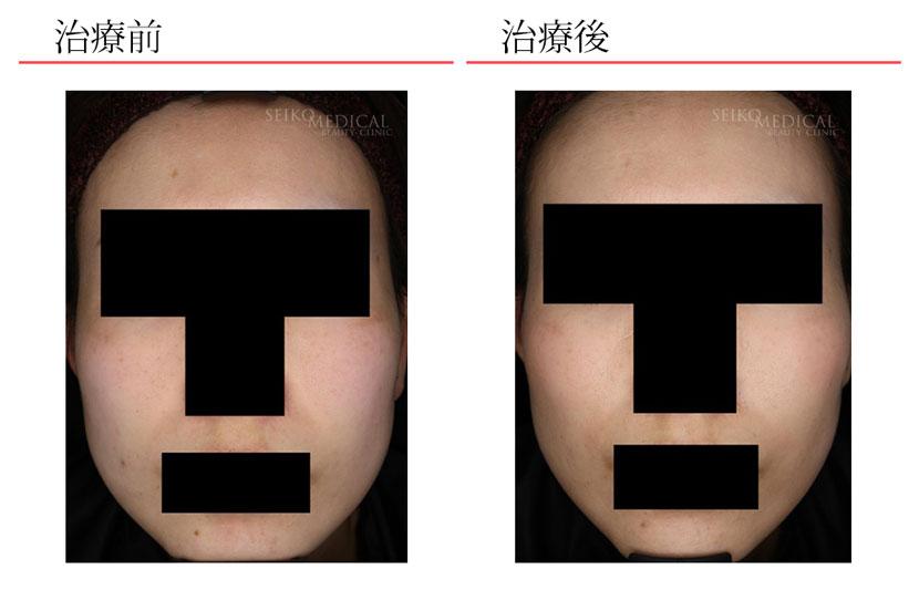 ウルトラセルQプラス症例写真