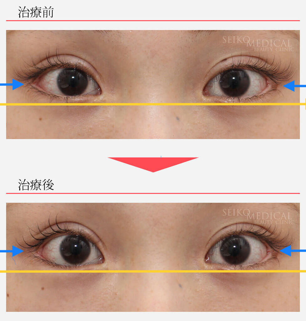 ゴロゴロ する 片目 目 だけ が