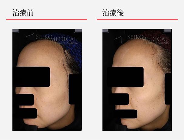 ゼオスキンへルス症例写真90