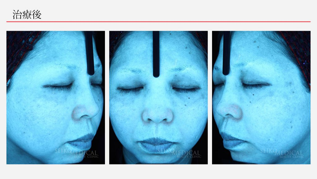 ゼオスキンへルス症例写真14