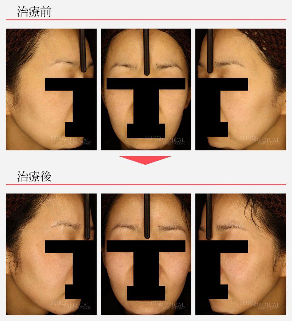 ゼオスキンへルス症例写真16