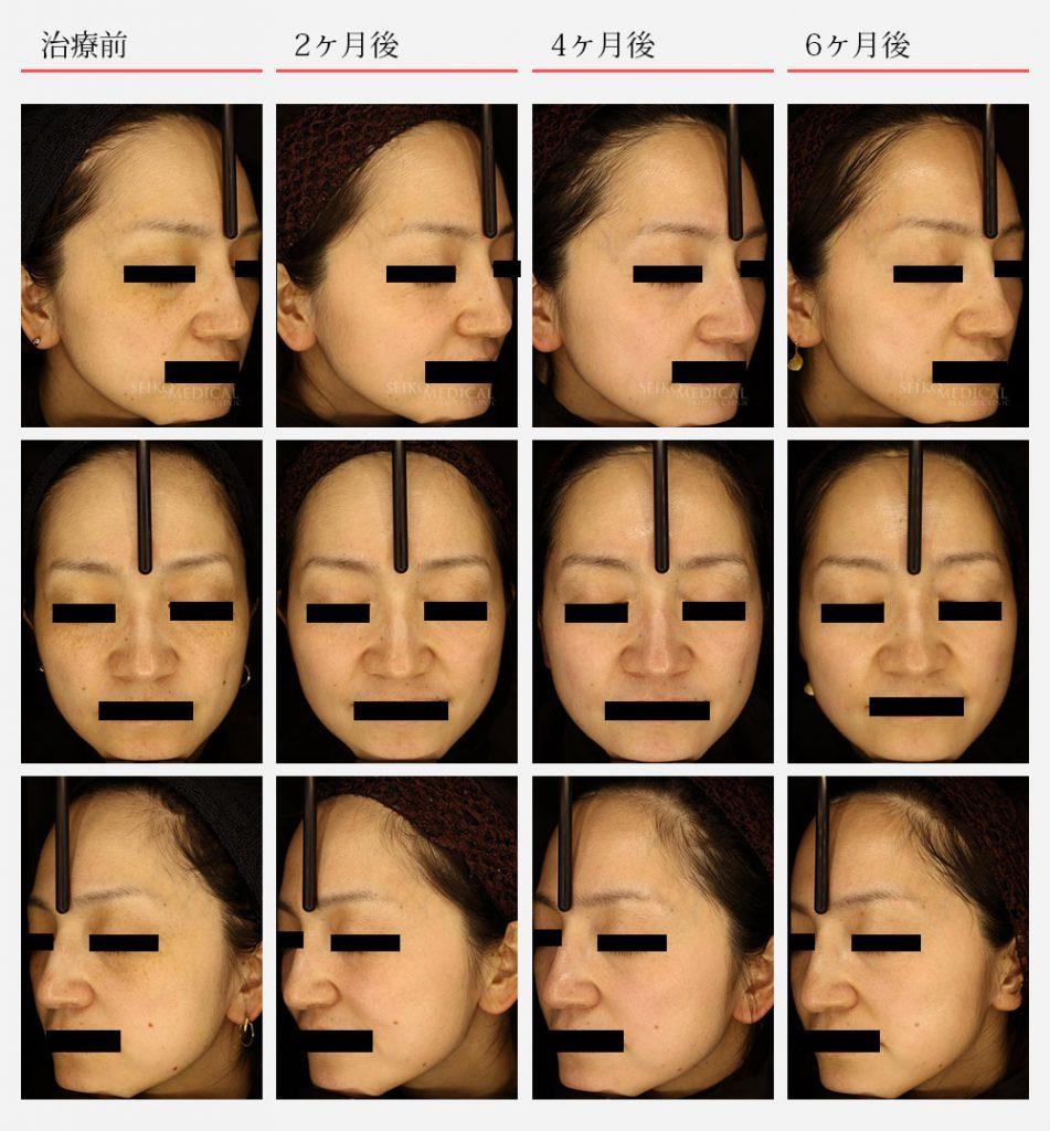 ゼオスキン症例写真