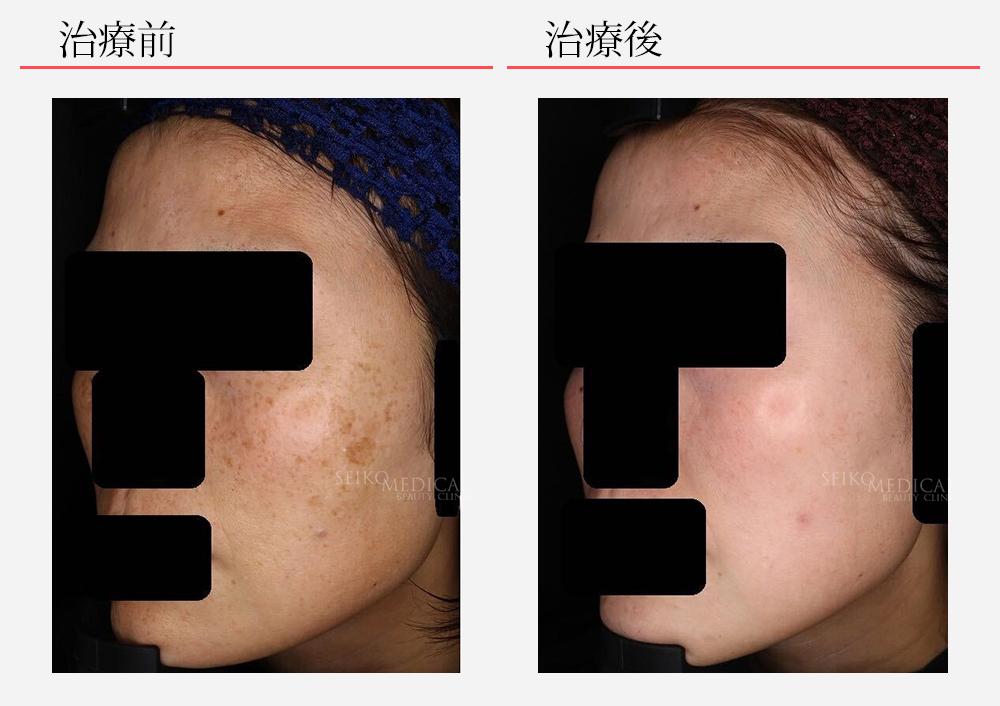 ゼオスキンへルス症例写真32