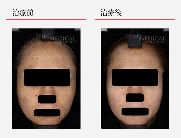 ゼオスキンへルス症例写真48