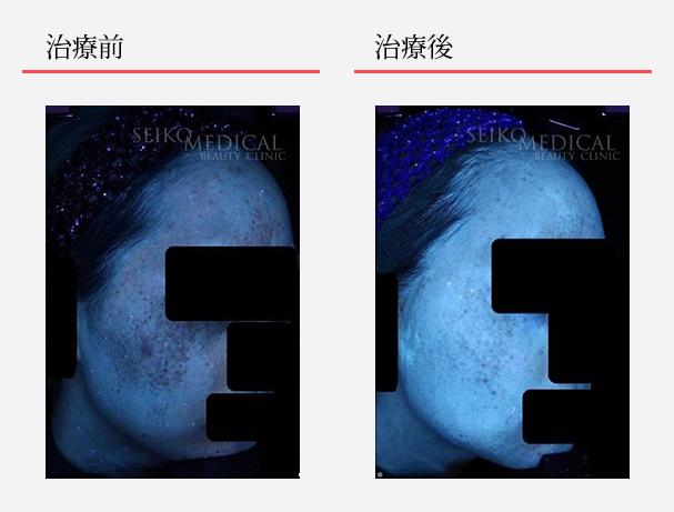 ゼオスキンへルス症例写真43