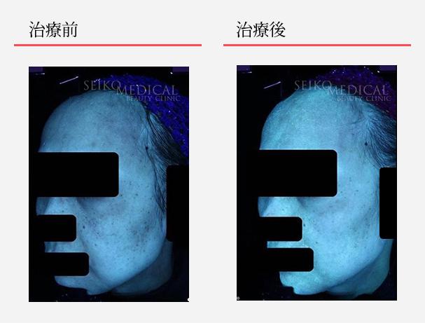 ゼオスキンへルス症例写真44