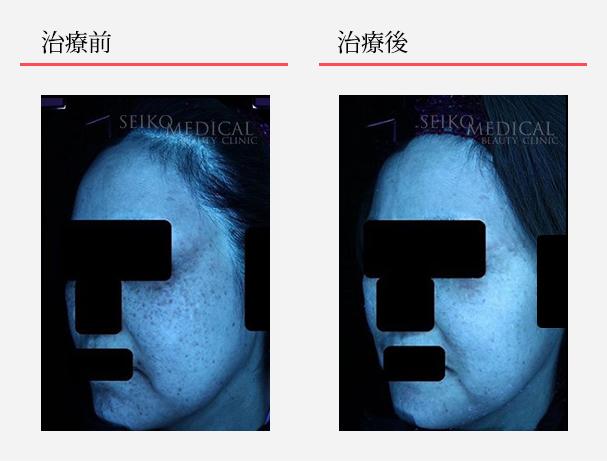 ゼオスキンへルス症例写真52