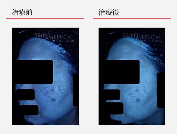 ゼオスキンへルス症例写真55