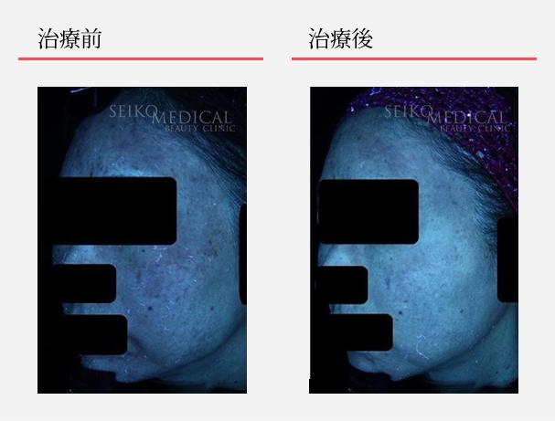 ゼオスキンへルス症例写真57