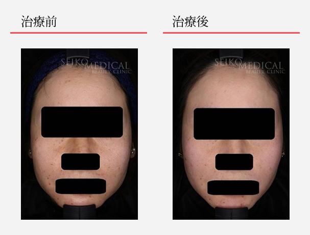 ゼオスキンへルス症例写真64