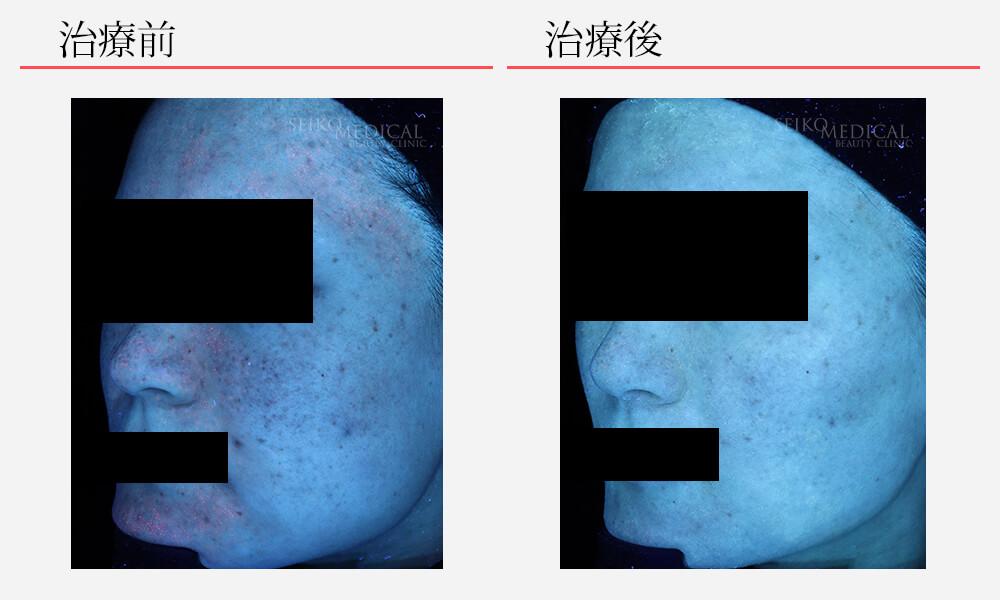 ゼオスキンへルス症例写真71