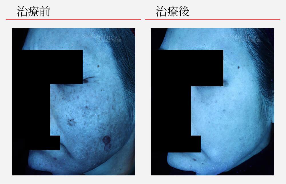 ゼオスキンへルス症例写真75