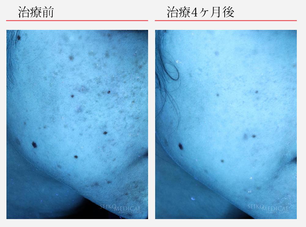 ゼオスキンへルス症例写真76