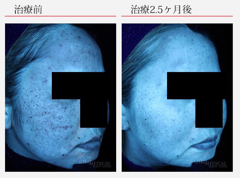 ゼオスキンへルス症例写真85