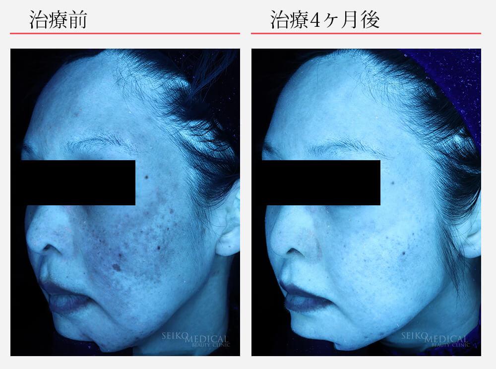 ゼオスキンへルス症例写真84